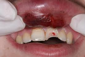 Sports Dental Injury Chipped Tooth Prevent Injury Mouthguard